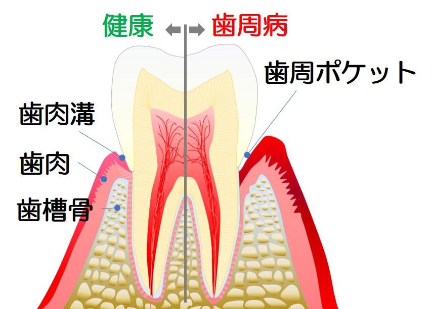 歯周病は万病の元のイメージ